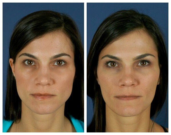 How I Found Relief from Jaw Clenching with Botox Injections